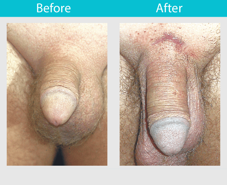 All methods of penis enlargement