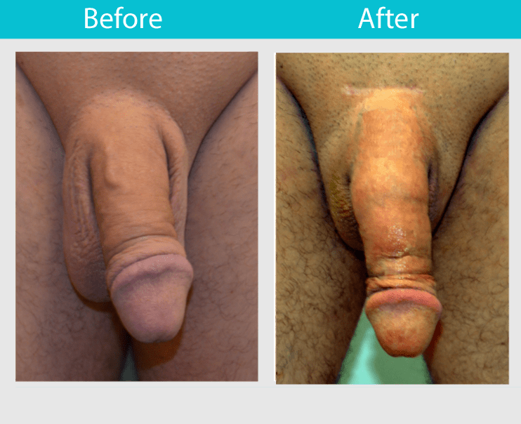 Penis Results 64