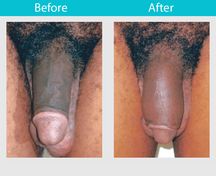 Slide 17--30 year old man had 3 fat injections to increase his length 1.25 inches and girth 2 inches.