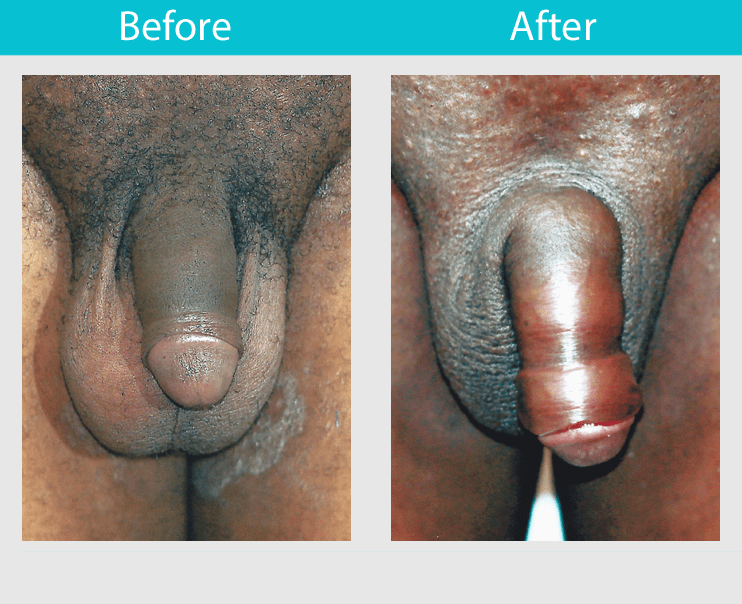 Penile enlargement through masturbation — pic 1