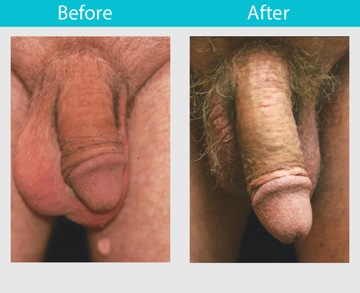 Slide 25--42 year old man, who had the ligament release procedure, achieved an increase of 2.25 inches in length while girth remained the same.