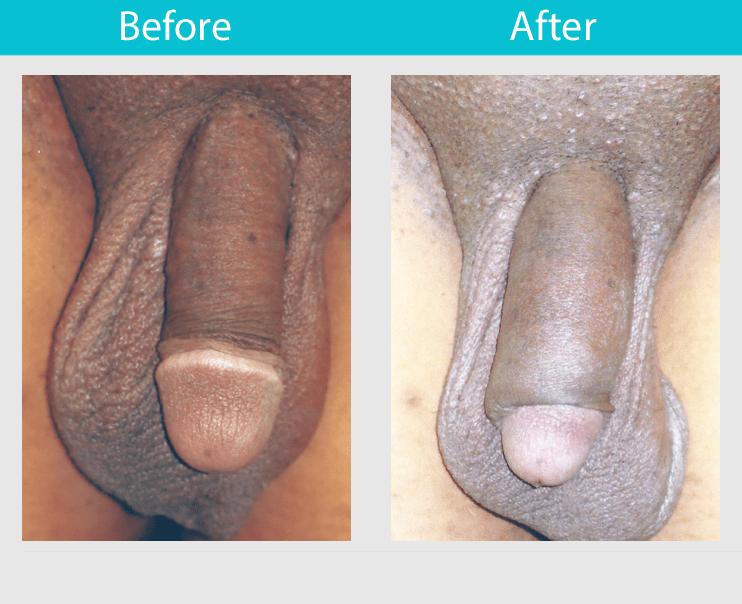 Penile Widening