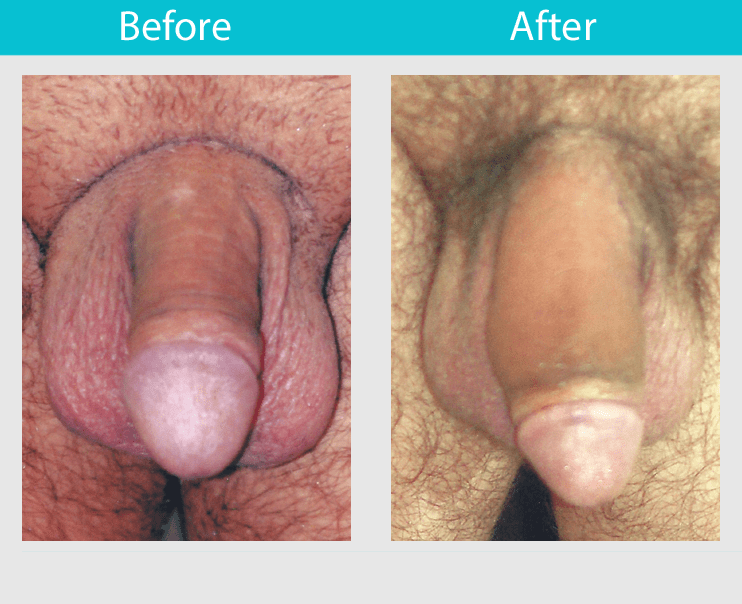 Surgical penis enlargement
