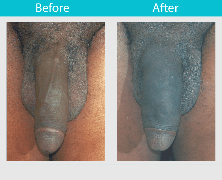 Free penis enlargement tips