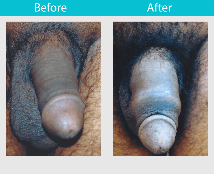 Before and After Photos of Male Enhancement Surgery